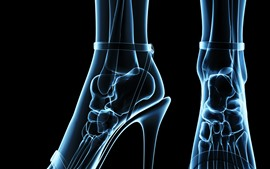 Preview wallpaper Girl legs, bones, heels, X-ray